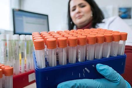 Denise Nestler, Medizinisch-technische Assistentin im Diagnosticum-Labor in Plauen, sortiert Röhrchen mit Rachenabstrichen, die auf den Coronavirus untersucht werden. Foto: Hendrik Schmidt/dpa-Zentralbild/dpa