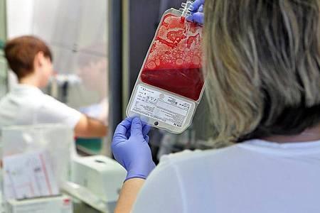 Aus Nabelschnurblut gewonnene Stammzellentransplantate sind in der Regel vor allem für jüngere Patienten geeignet. Foto: Jan Woitas/dpa-Zentralbild/dpa-tmn
